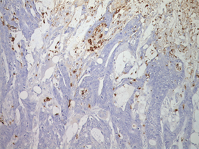 Colon cancer stained with Myeloperoxidase antibody