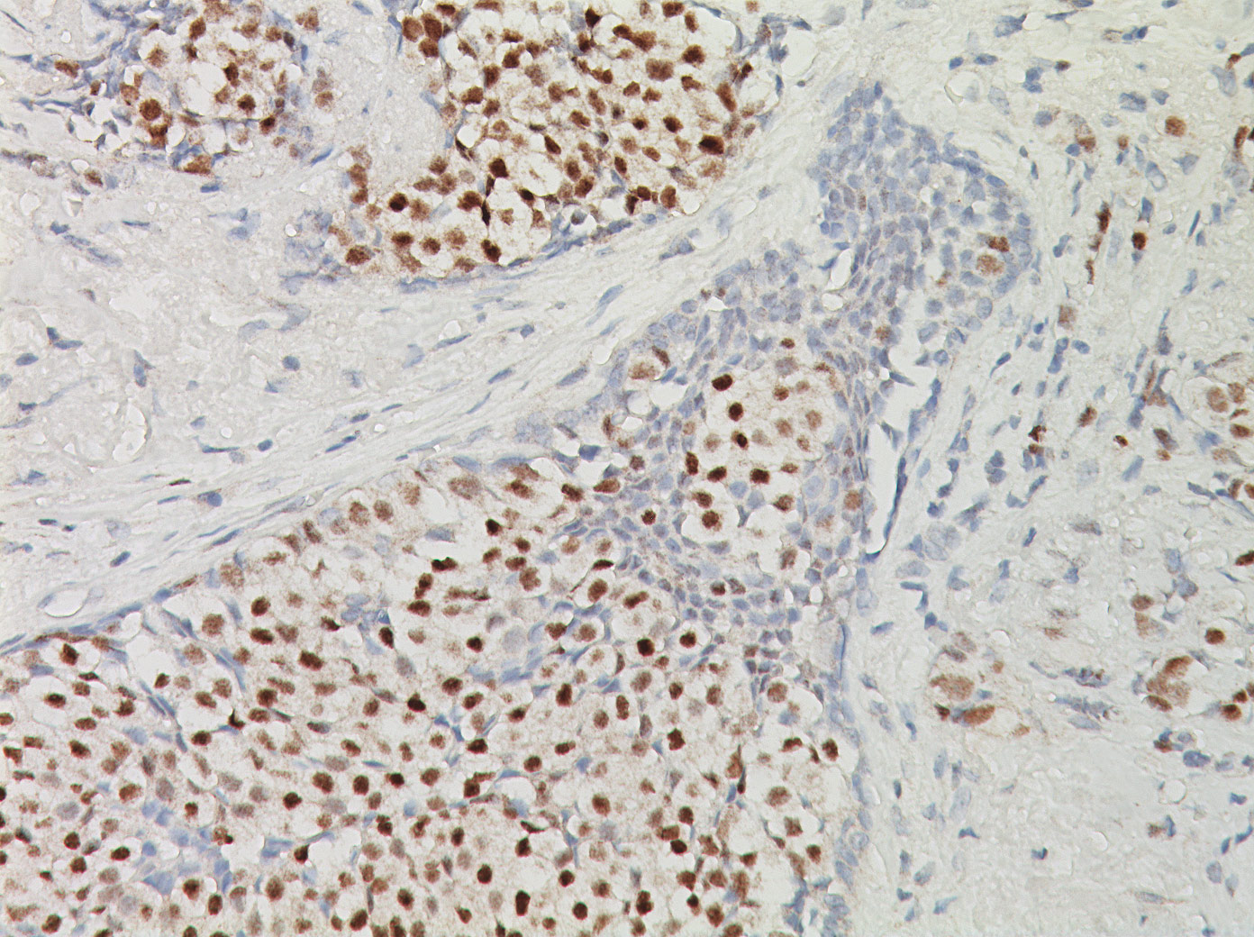 Breast Stained with Estrogen Receptor antibody (ER [1D5])