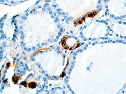 Thyroid stained with Calcitonin antibody