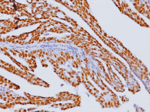 Breast cancer stained with Estrogen Receptor mouse antibody (ER) [6F11]