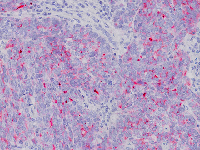 Ovarian cancer stained with CA 125 antibody.