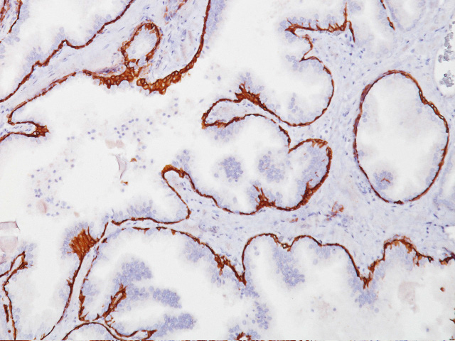 Prostate stained with Cytokeratin 5/6 antibody (CK5/6)