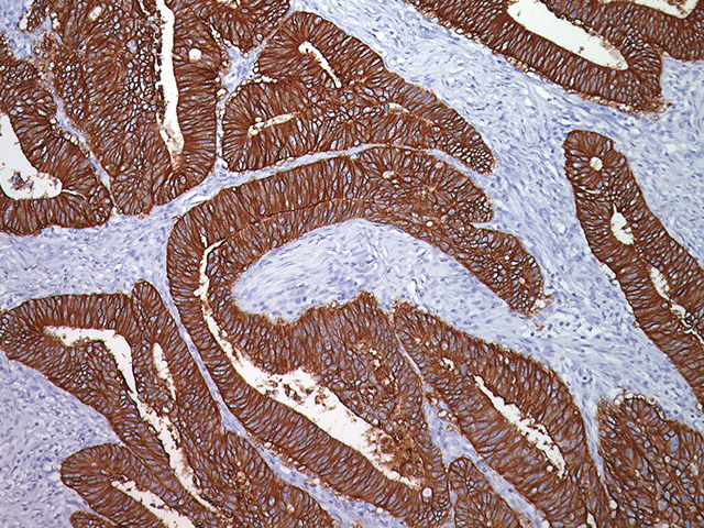 Breast cancer stained with Anti-Human Epithelial antigen.