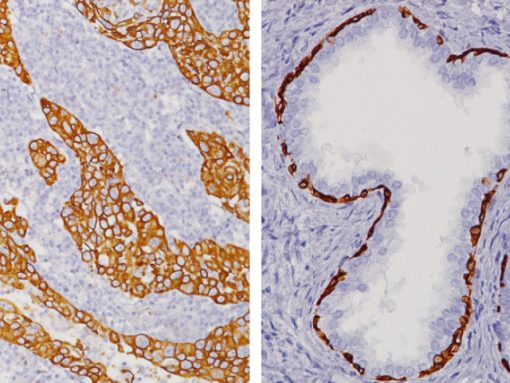 Lung (L) and Prostate (R) stained with Cytokeratin HMW [34βE12]