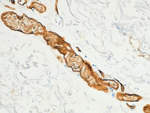 Skin stained with Collagen IV antibody