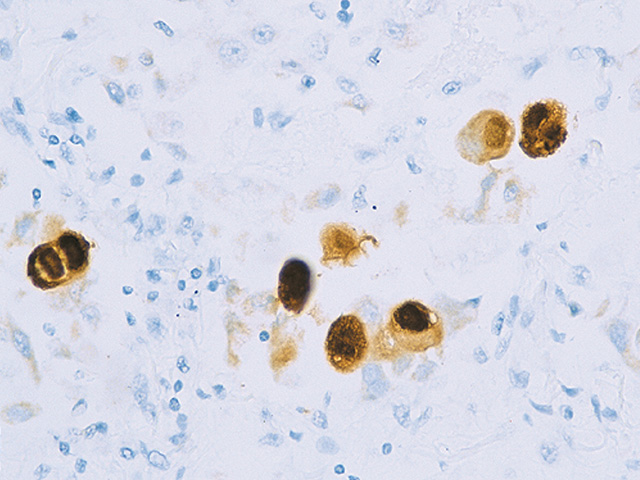 CMV infected tissue stained with Cytomegalovirus antibody