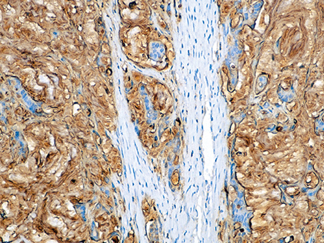 Colon cancer stained with CA 19-9 antibody.