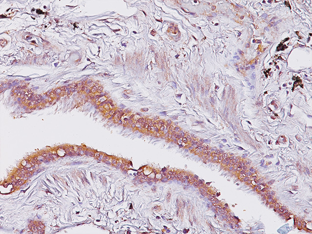 Kidney stained with Amyloid A Component antibody.