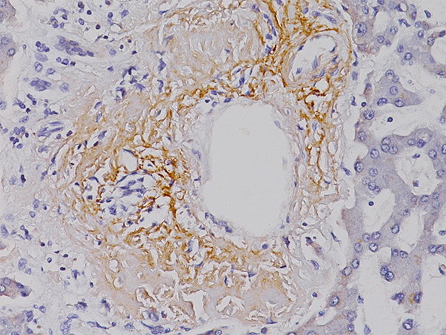 Stomach tissue stained Amyloid P Component.