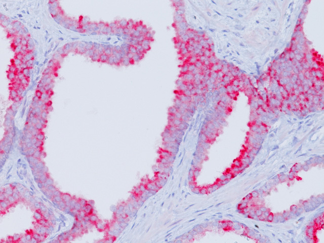 Prostate cancer stained with P504S rabbit antibody, 3X