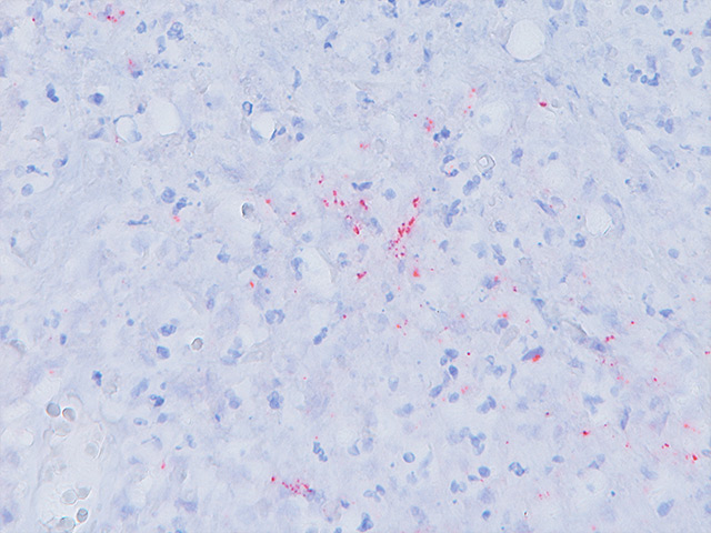 Lymph node stained with Cat Scratch antibody.