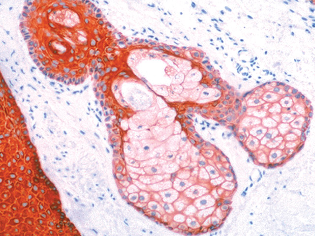 Skin stained with Pan Cytokeratin antibody