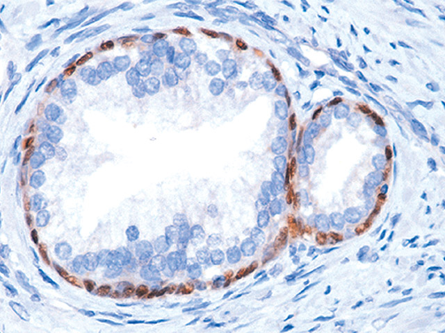 Prostate stained with p63 antibody