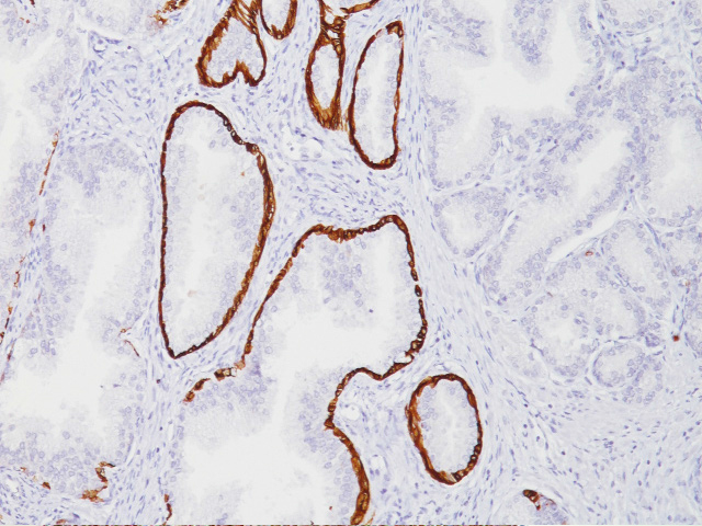 Prostate stained with Cytokeratin 14 antibody