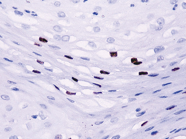 Cervix stained with HPV-16 antibody.