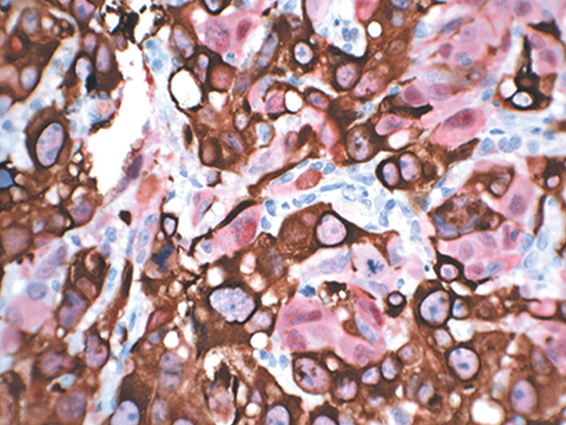 Melanoma stained with Pan Melanoma + S100 antibody