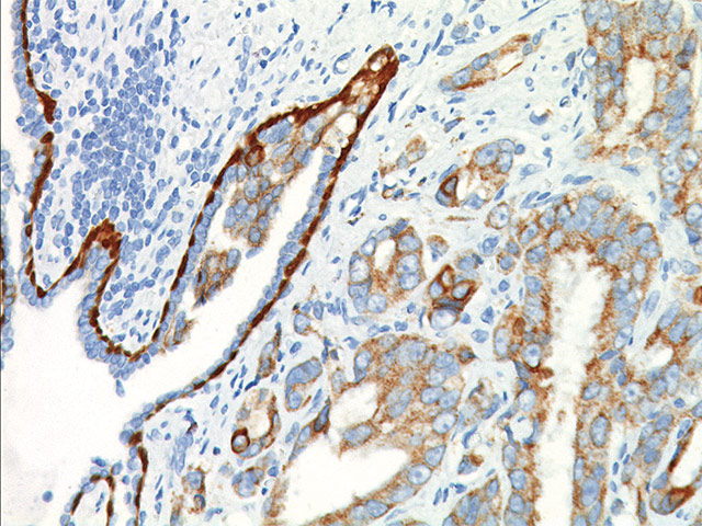 Prostate cancer stained with CK5/14 + p63 + p504s antibody