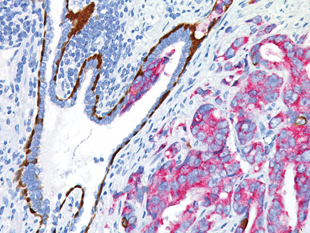 Prostate cancer and prostatic intraepithelial neoplasia stained with PIN-4, CK5/14, p63 (DAB), P504S (FR)