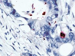 Colon cancer stained with Caspase-3 antibody