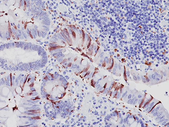 Colon cancer stained with Caspase-3 antibody.
