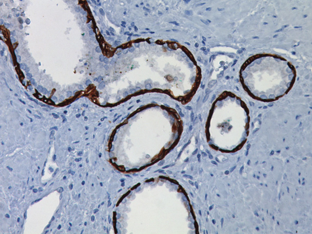 Prostate stained with Cytokeratin 5