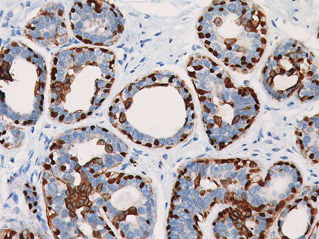 Breast cancer stained with CK5 + p63