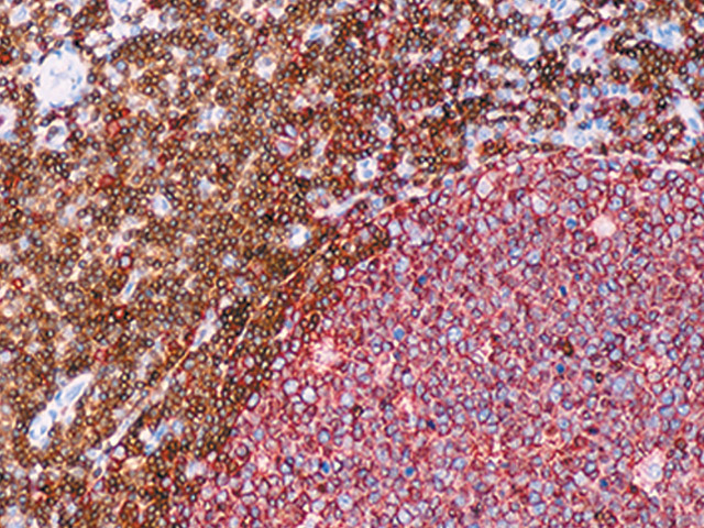 Tonsil stained with L26 + CD3