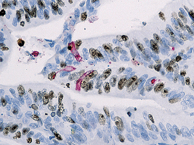 Colon cancer stained with Ki-67 (DAB) + Caspase-3 (FR)