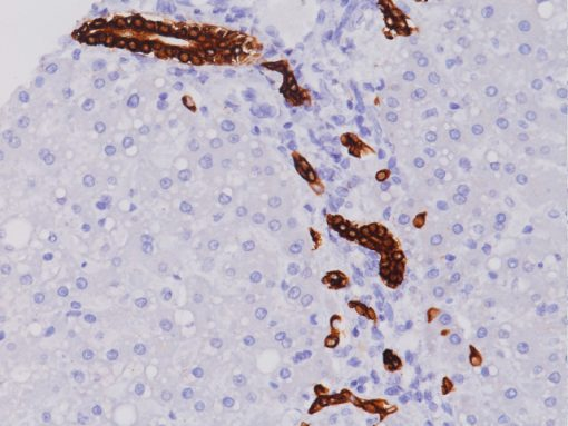 Bile ducts in normal liver stained with Cytokeratin 19 antibody