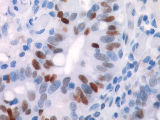Colon cancer stained with p53