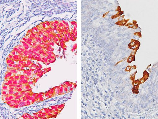 (L) Bladder CIS & (R) Reactive atypia in bladder stained with Uro-2™