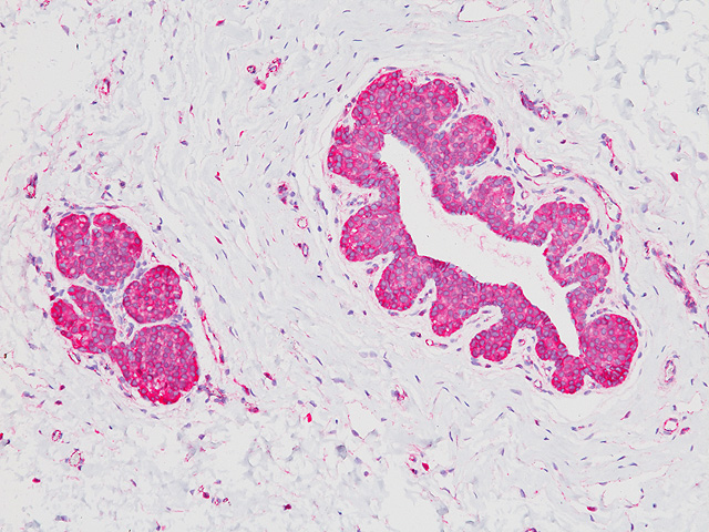 Lobular breast carcinoma in situ stained with p120 Catenin antibody