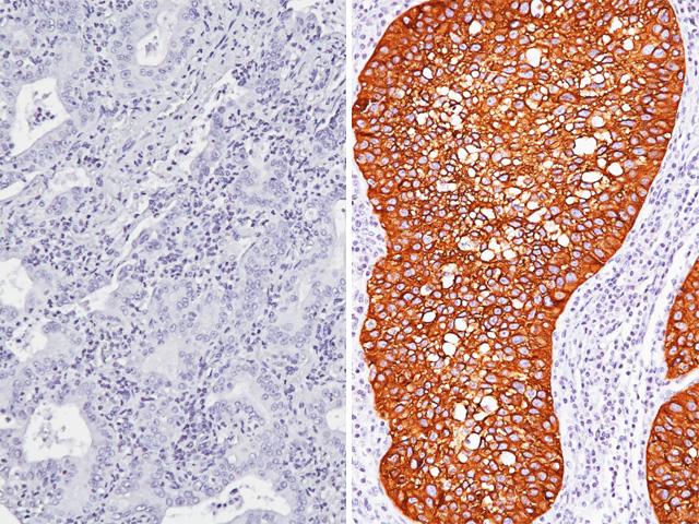 (L) Desmoglein 3 + CK5 negative in lung adenocarcinoma (R) Desmoglein 3 + CK5 antibody positive in lung SqCC