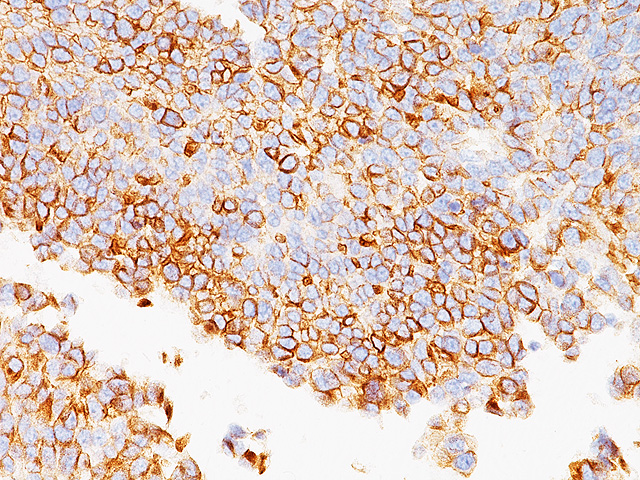 Bladder TCC stained with Uroplakin III Antibody