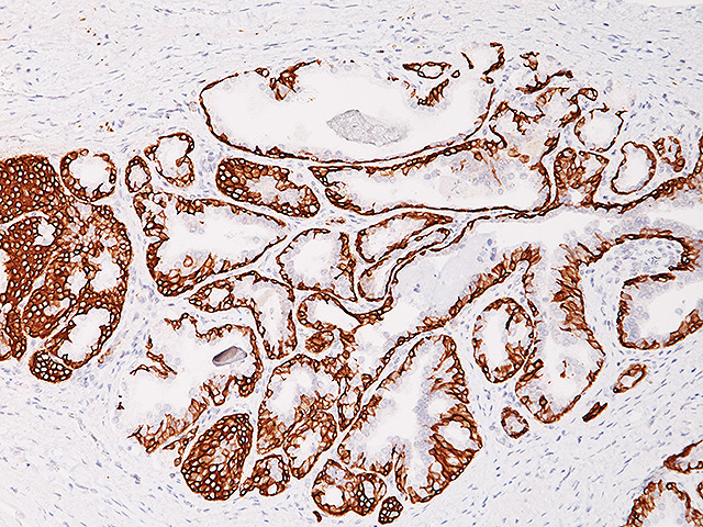 Prostate stained with Cytokeratin 5/14 antibody