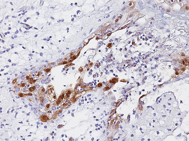 HSV 1 infected skin stained with Herpes Simplex Virus Antibody