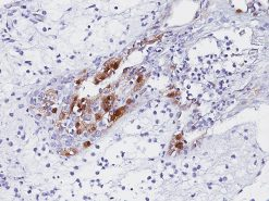 HSV 2 infected skin stained with Herpes Simplex Virus 2 antibody