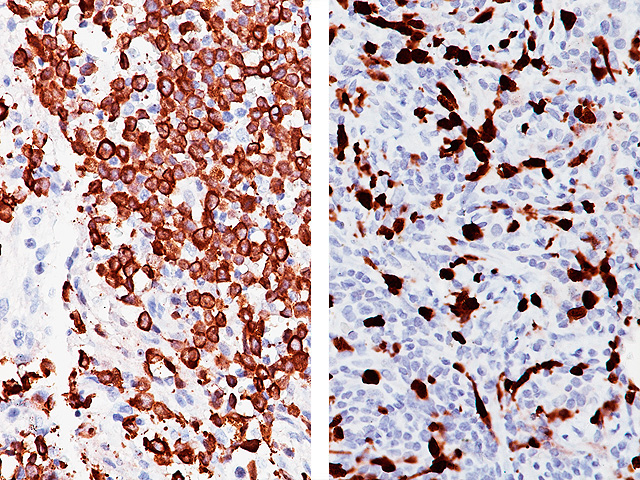 (L) Anaplastic large cell lymphoma and (R) Lung adenocarcinoma stained with ALK [5A4]