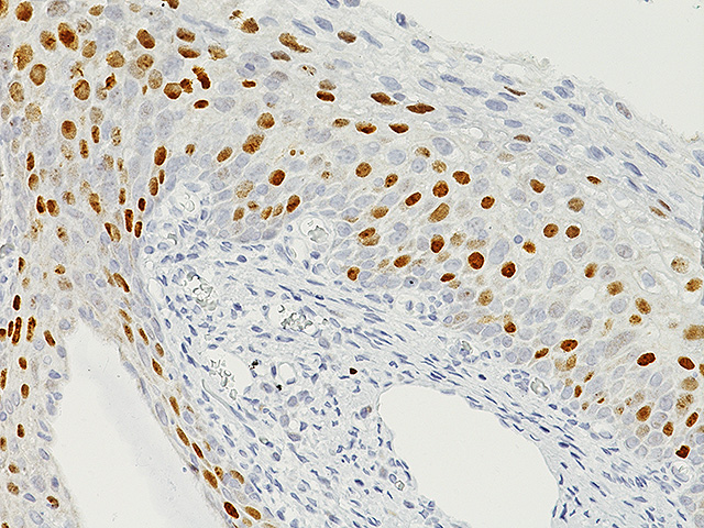 Normal cervix stained with Topoisomerase II alpha antibody