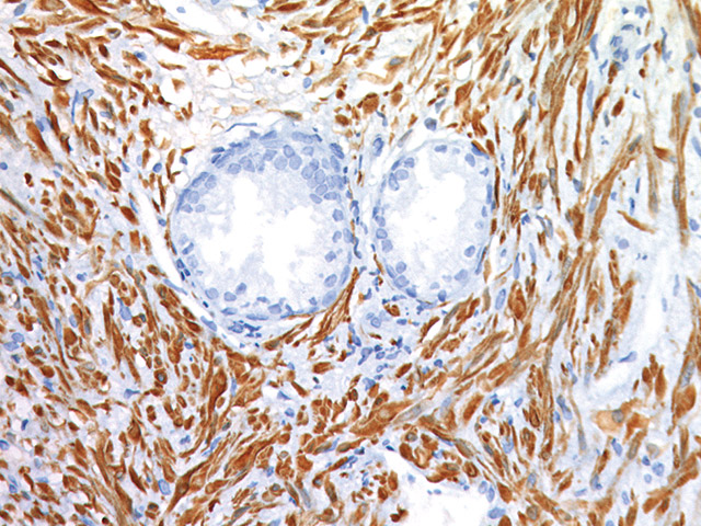 Prostate stained with SMA antibody
