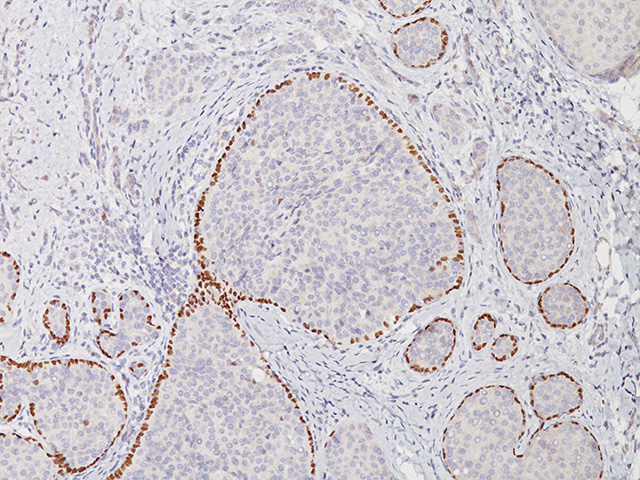 Breast cancer stained with p63 antibody