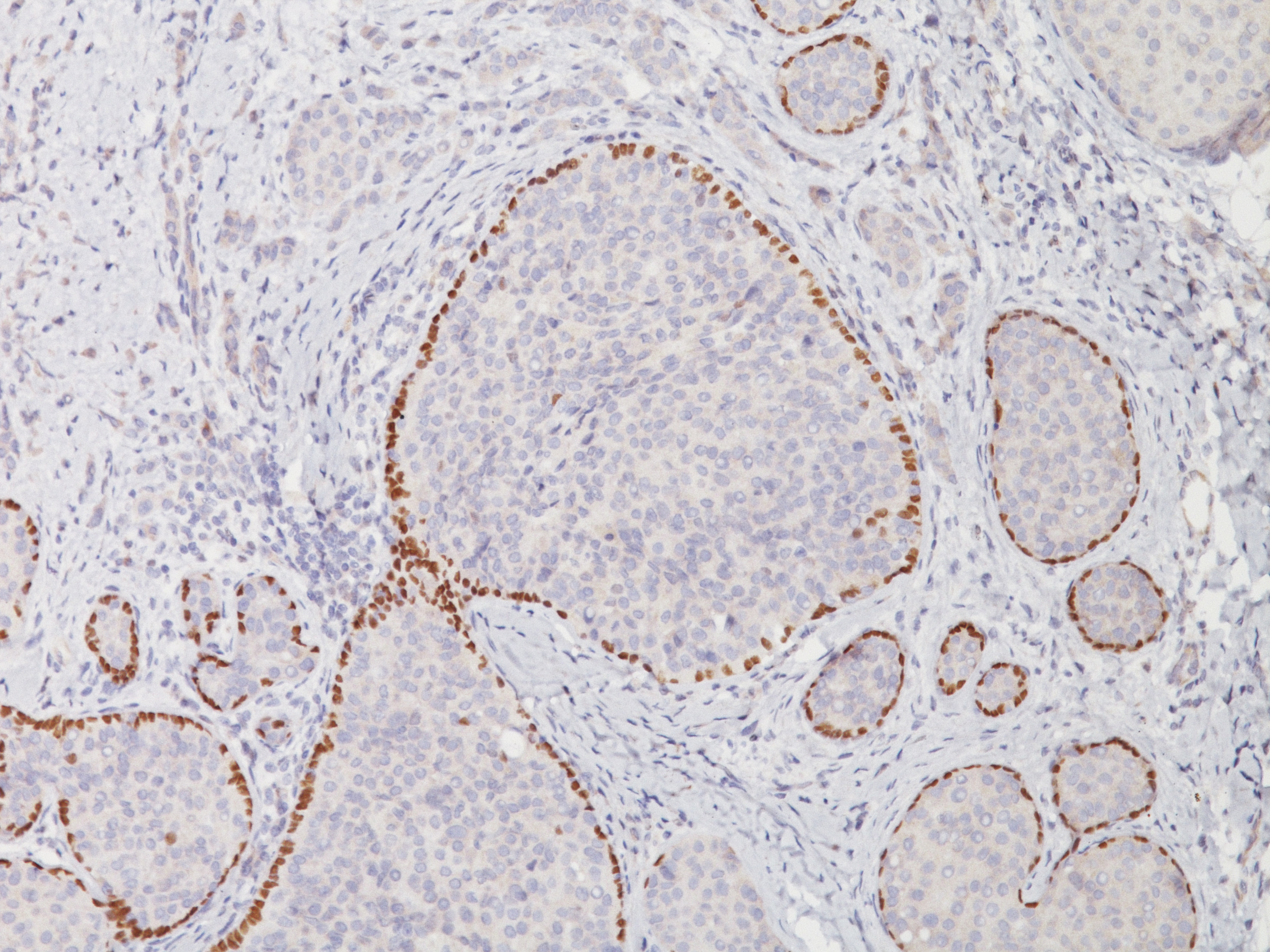 Breast cancer stained with p63, 3X