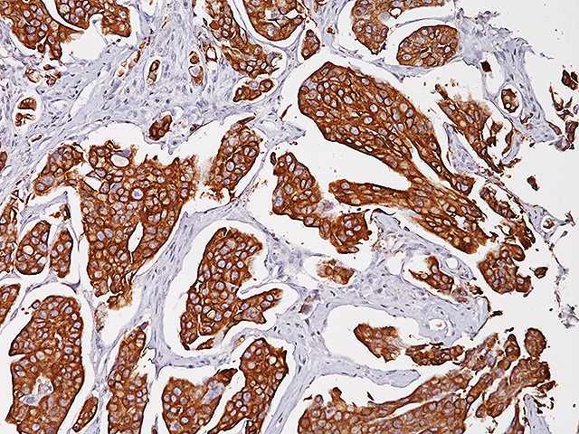 Bladder cancer stained with Uroplakin II antibody