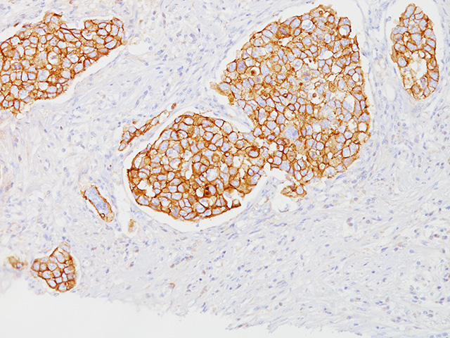 Breast ductal cell carcinoma stained with E-Cadherin (RM)