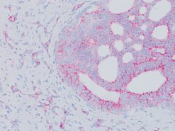 Prostate cancer stained with AMACR Antibody 2x