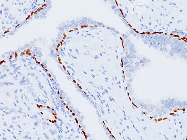 Prostate tissue stained with p63, 3X