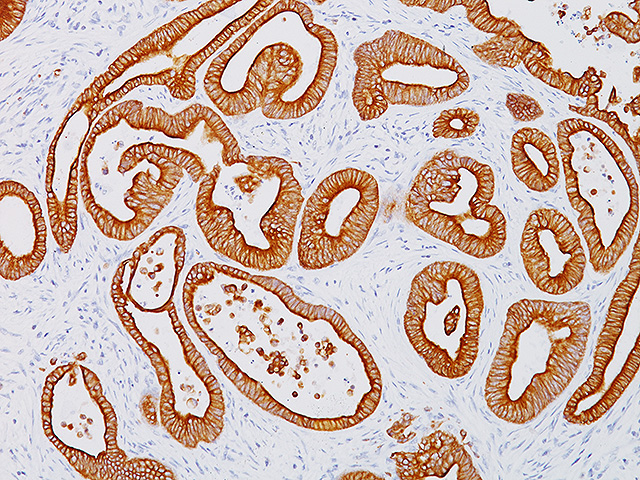 Colon cancer stained with Cytokeratin 18 antibody