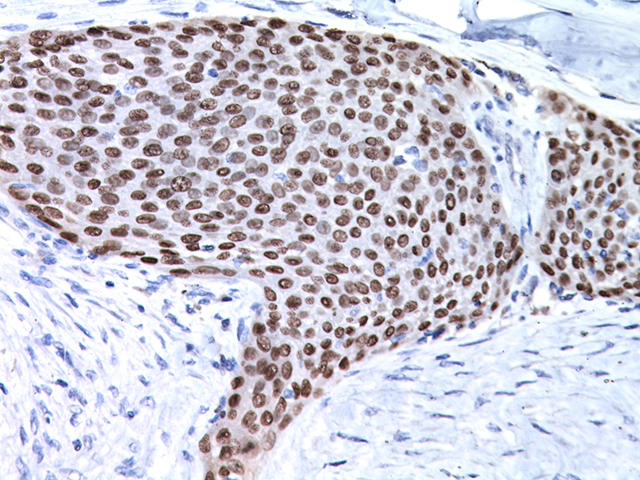 Lung SqCC stained with p63, 2X