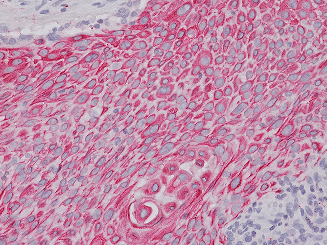 Lung Squamous Carcinoma stained with CK5 2X