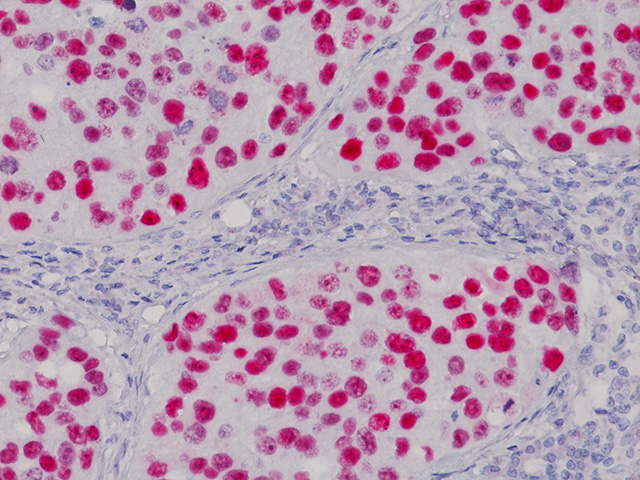 Bladder Cancer stained with p53 (RM) antibody, 2X